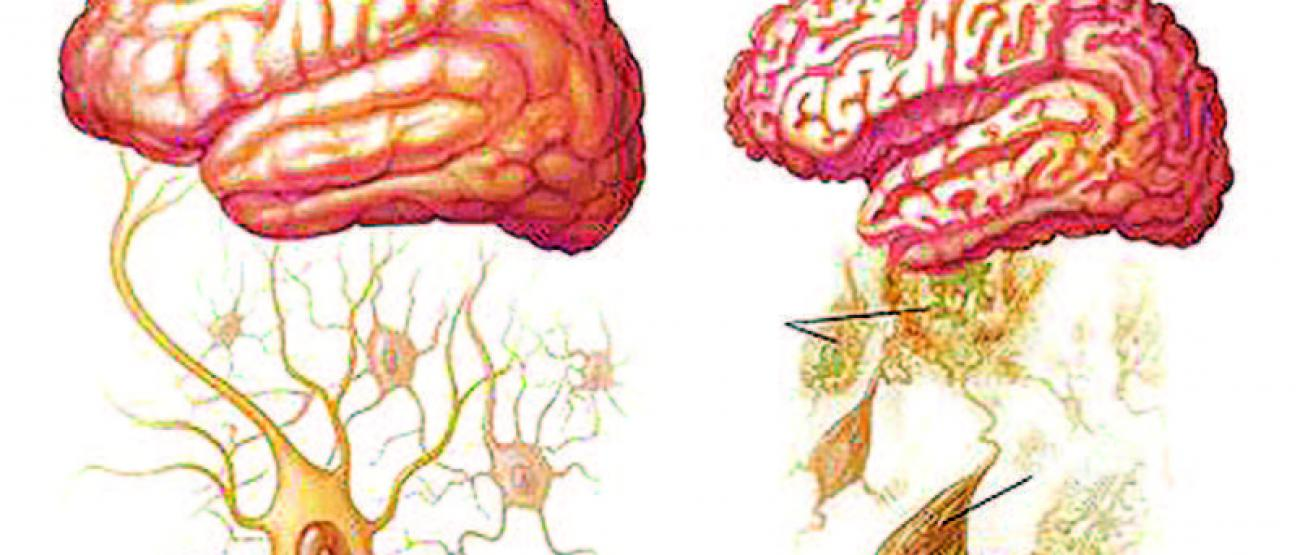 Healthy brain (left) versus an Alzheimer's brain (right)